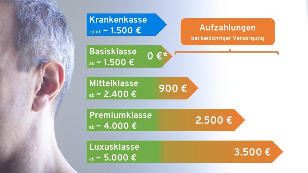 Hörgeräte Preise und Kosten nach Abzug der Krankenkassenzahlungen