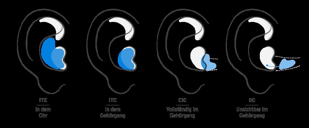 Welches Hörgerät ist das Beste? IdOs im Vergleich